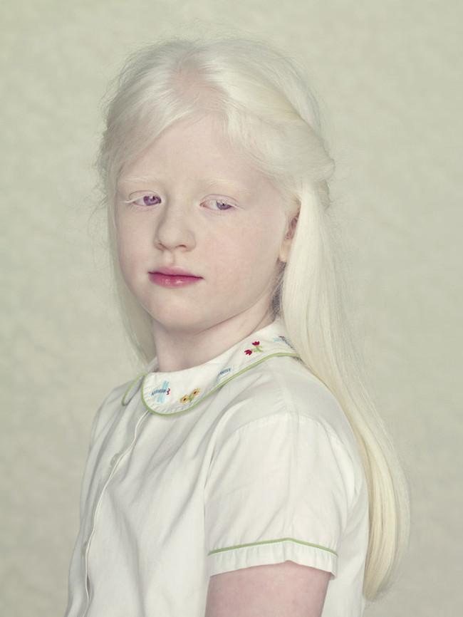 เล่าเรื่องจากภาพแฟชั่นคนอินเดียและชาติต่างๆที่เป็น Albino