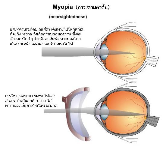 สายตาสั้นเกิดจากอะไร