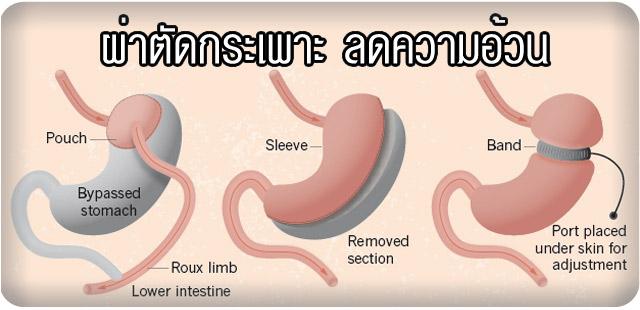 ovmvehjeqd955LVS1l4 o - รีวิว แชร์ประสบการณ์ ศัลยกรรมผ่าตัดลดน้ำหนัก จาก 140 กก เหลือ 80 กก ใน 1 ปี