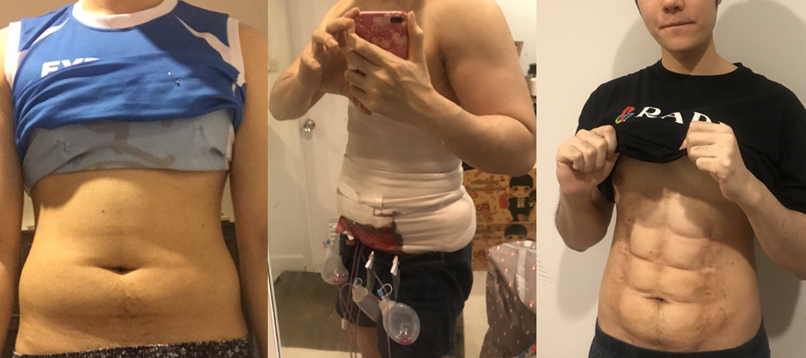 Gym-weary Thais going under knife for instant 6-packs