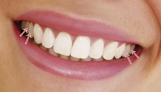 What Is The Natural Color Of Human Teeth
