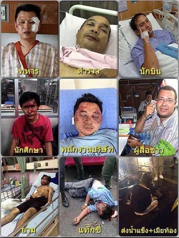 Image result for กปปส นกหวีด ของลุงกำนันสุเทพ ทำร้ายประชาชน