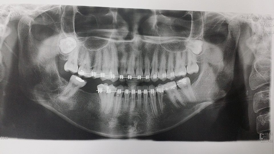 สอบถามผ่าฟันคุด (มีรูปฟิล์ม X-ray) - Pantip